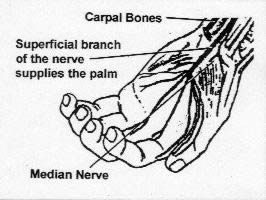 image of carpal bones